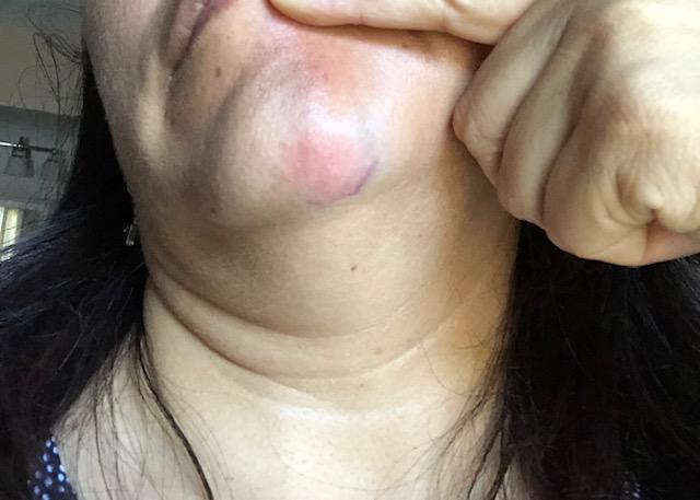 Bruise-3